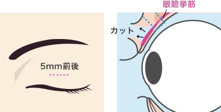 瞼 が 下がる 片目